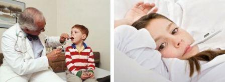 Герпесная, гнойная, герпетическая и лакунарная ангина у ребенка, доктор Комаровский