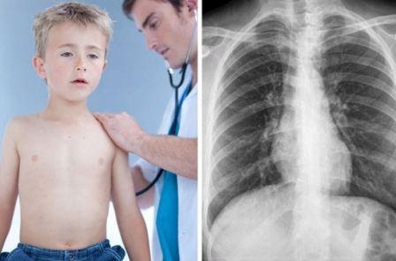 Обструктивный и острый, аллергический бронхит у детей, симптомы и лечение, доктор Комаровский