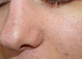 Как почистить чёрные точки на лице