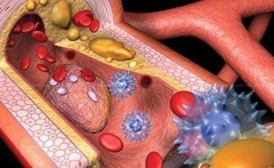 Диета для снижения холестерина, питание при повышенном холестерине